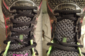 Before and after of the shoe lace method that i supposed to take pressure off the top of my foot.